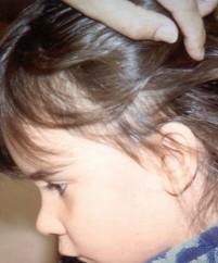 Το παιδί σας έχει ψείρες;