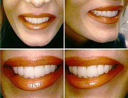 Αισθητική Οδοντιατρική. Ιατρική πράξη ή απλή αισθητική παρέμβαση;