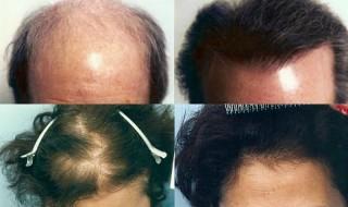 Εμφύτευση Μαλλιών: Επιλέγοντας τη Σωστή Μέθοδο
