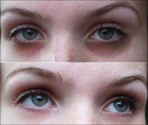 Μαύροι κύκλοι γύρω από τα μάτια