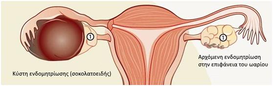 endomitriosi