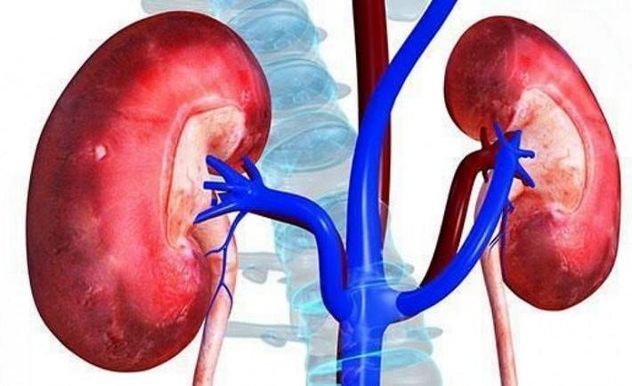Χρόνια νεφρική ανεπάρκεια - Όταν η αιμοκάθαρση είναι η μόνη λύση!