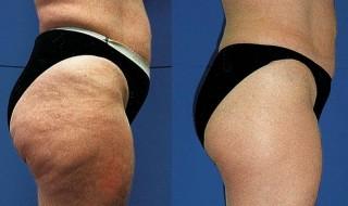 Λιπογλυπτική για επανασχηματισμό σώματος χωρίς επέμβαση