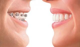 Σιδεράκια και στραβά δόντια. Τι προσφέρει η ορθοδοντική θεραπεία;