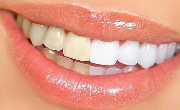 Κίτρινα δόντια - Πώς να απαλλαγείτε!